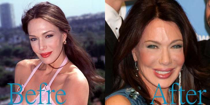 Complete analysis of Hunter Tylo's plastic surgery and the shocking transformation of her face over the years